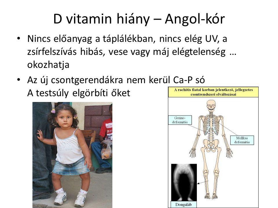D vitamin hiány – Angol-kór