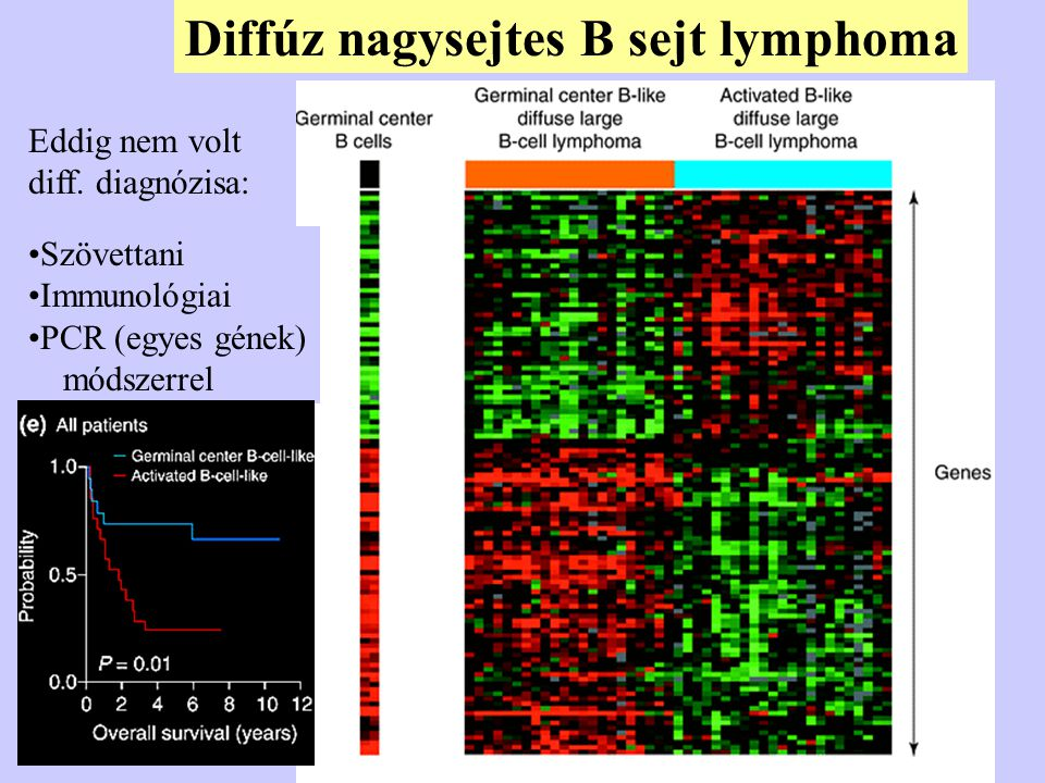 Diffúz nagysejtes B sejt lymphoma