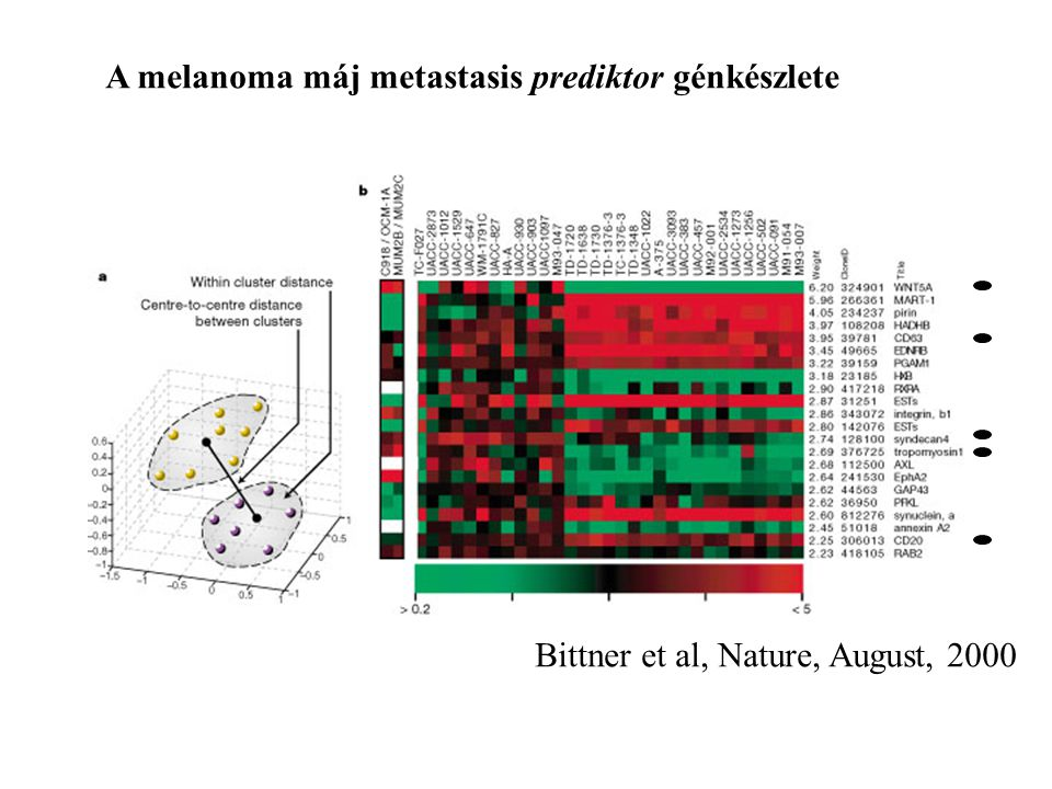 A melanoma máj metastasis prediktor génkészlete