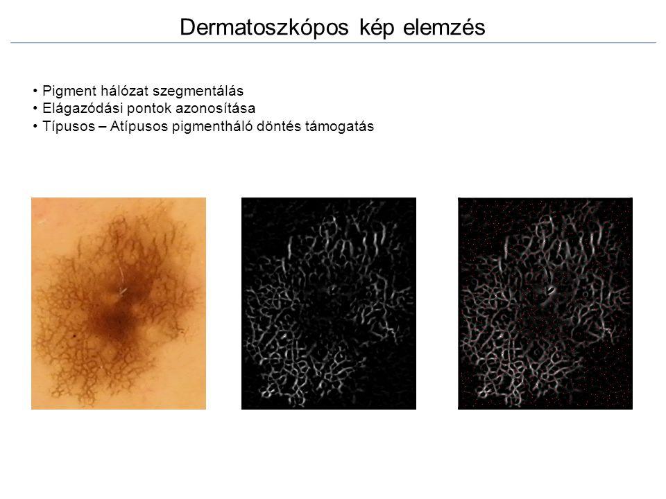 Dermatoszkópos kép elemzés