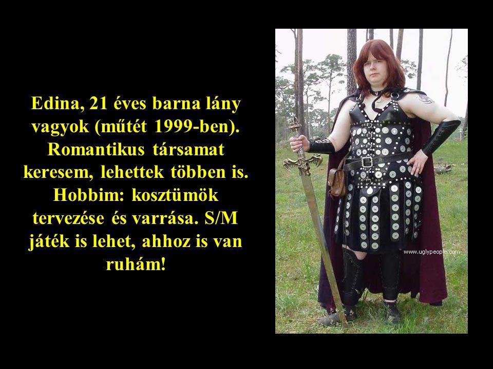 Edina, 21 éves barna lány vagyok (műtét 1999-ben)
