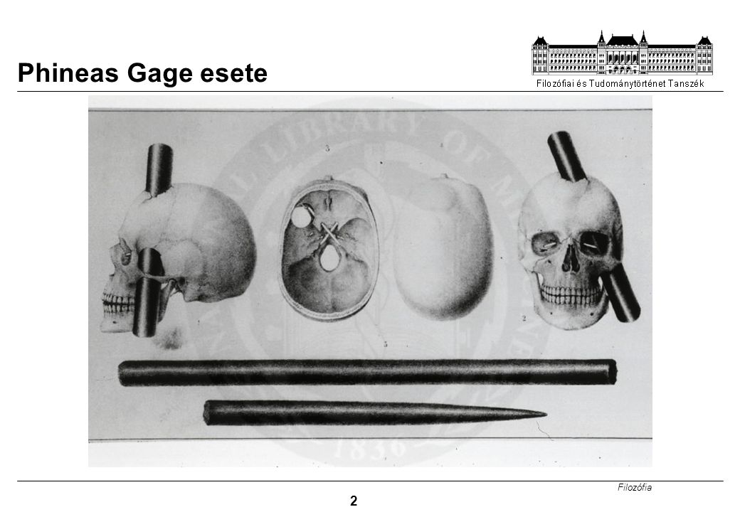 Phineas Gage esete