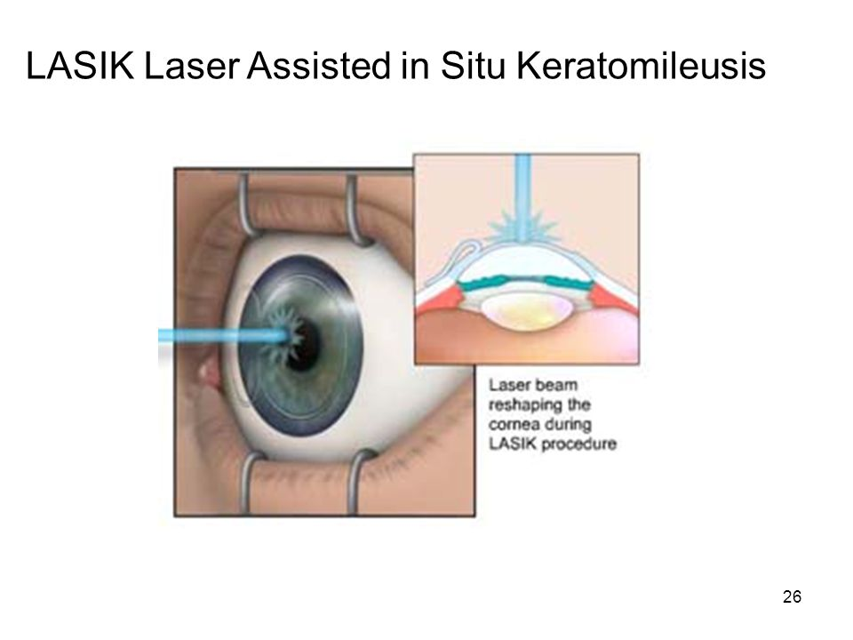 LASIK Laser Assisted in Situ Keratomileusis
