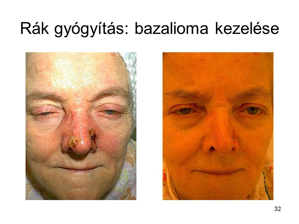 Rák gyógyítás: bazalioma kezelése