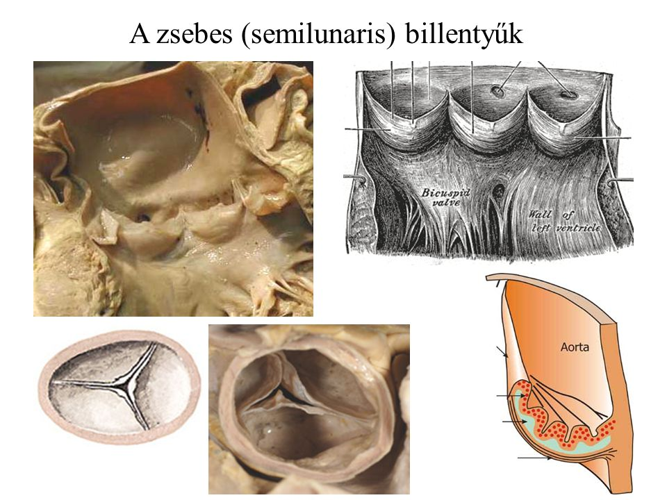A zsebes (semilunaris) billentyűk