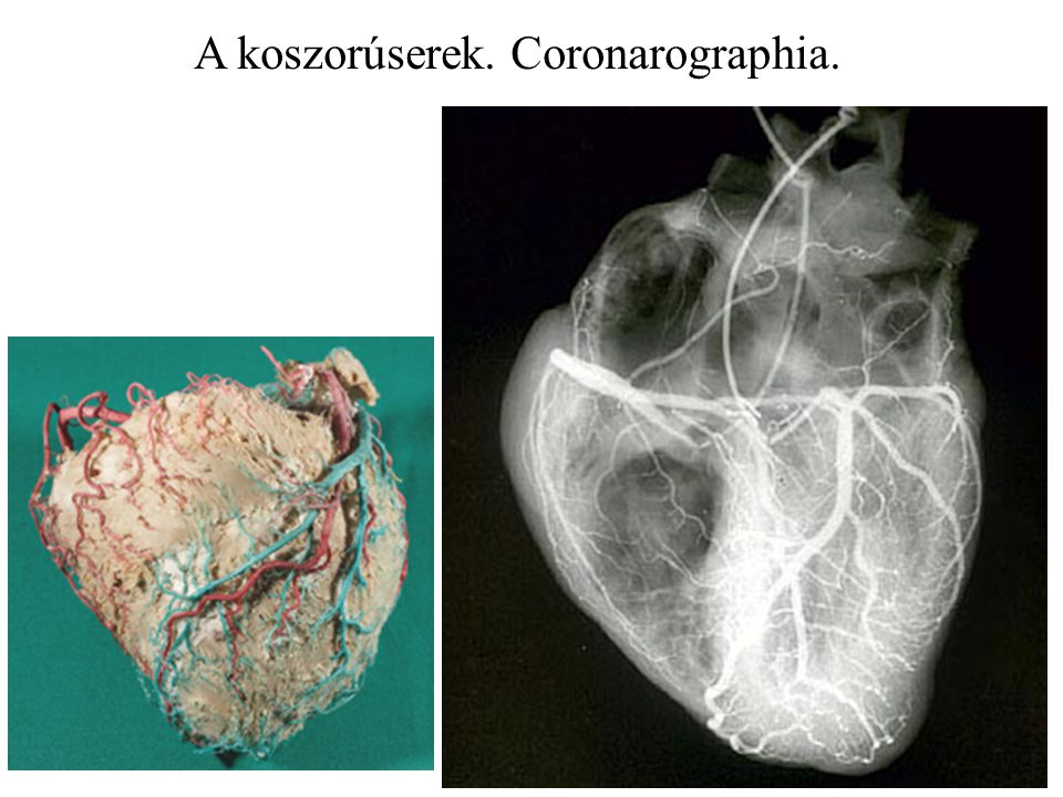 A koszorúserek. Coronarographia.