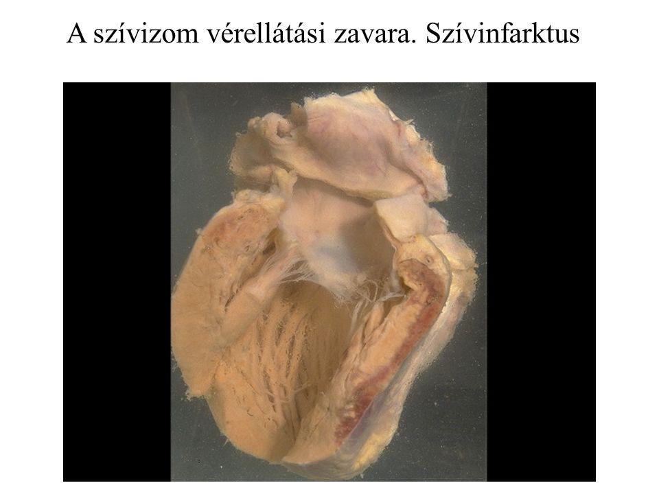 A szívizom vérellátási zavara. Szívinfarktus