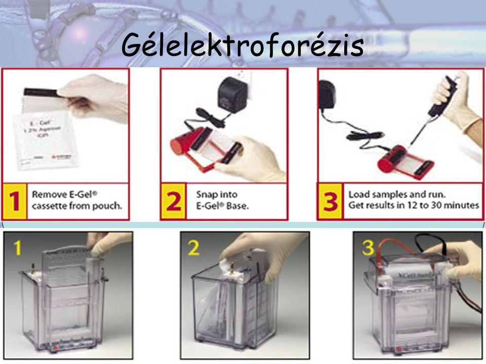 Gélelektroforézis