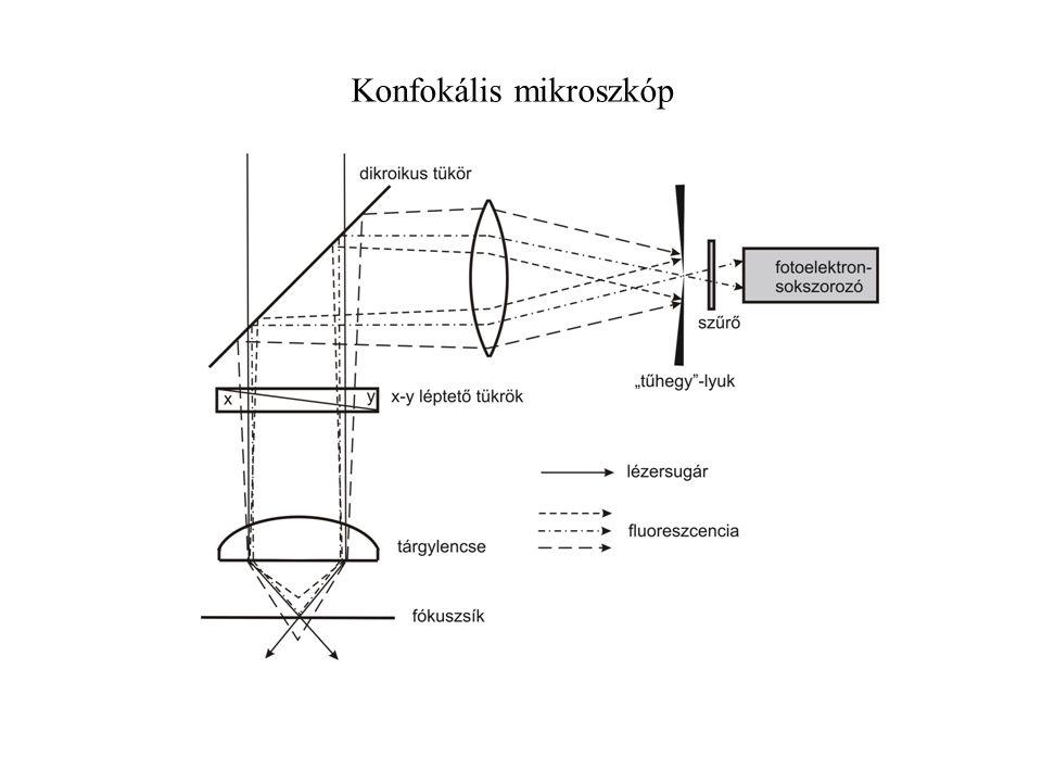 Konfokális mikroszkóp
