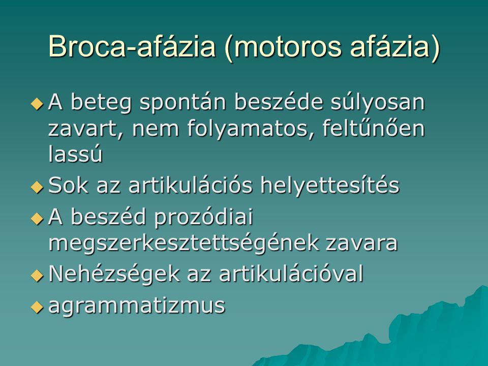 Broca-afázia (motoros afázia)