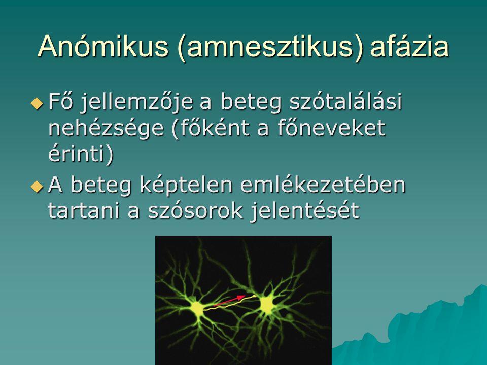 Anómikus (amnesztikus) afázia
