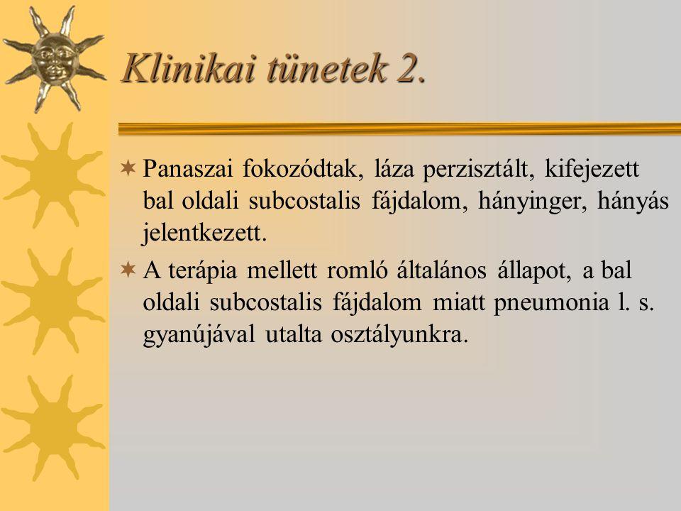 Klinikai tünetek 2. Panaszai fokozódtak, láza perzisztált, kifejezett bal oldali subcostalis fájdalom, hányinger, hányás jelentkezett.