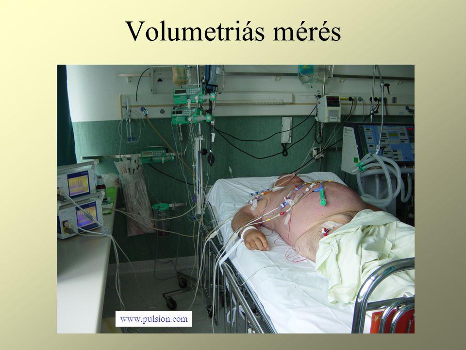 Volumetriás mérés www.pulsion.com