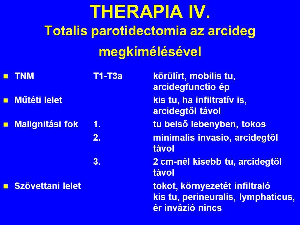 THERAPIA IV. Totalis parotidectomia az arcideg megkímélésével