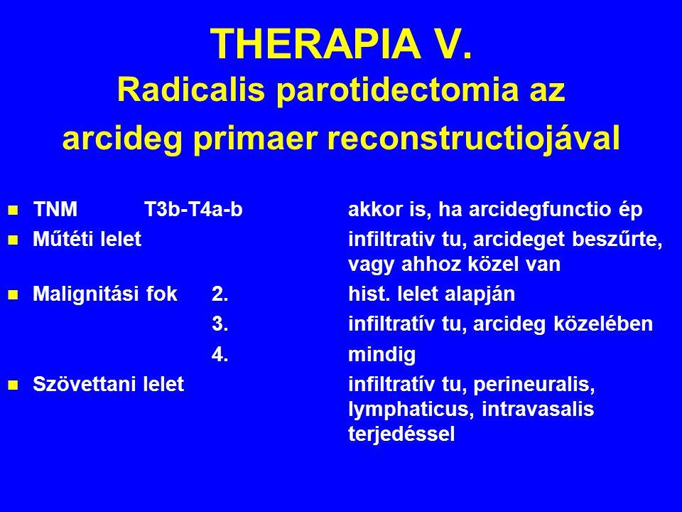 THERAPIA V. Radicalis parotidectomia az arcideg primaer reconstructiojával