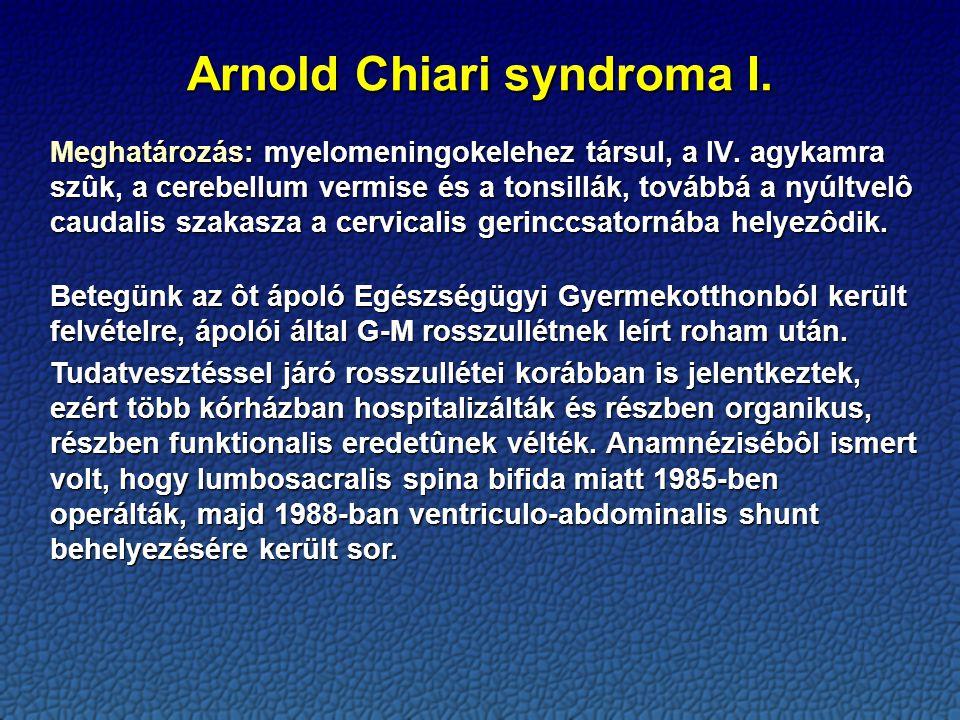 Arnold Chiari syndroma I.
