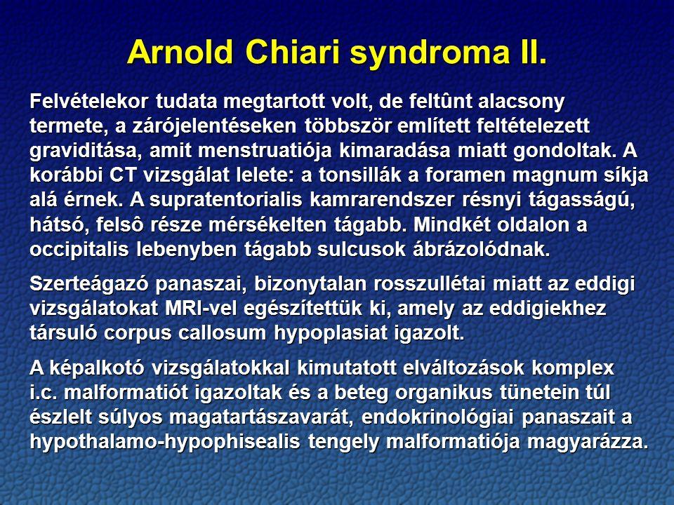 Arnold Chiari syndroma II.
