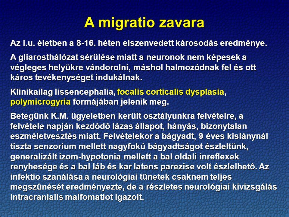 A migratio zavara Az i.u. életben a 8-16. héten elszenvedett károsodás eredménye.