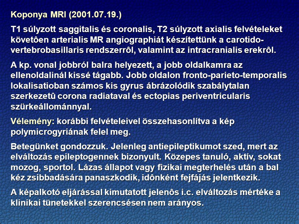 Koponya MRI (2001.07.19.)