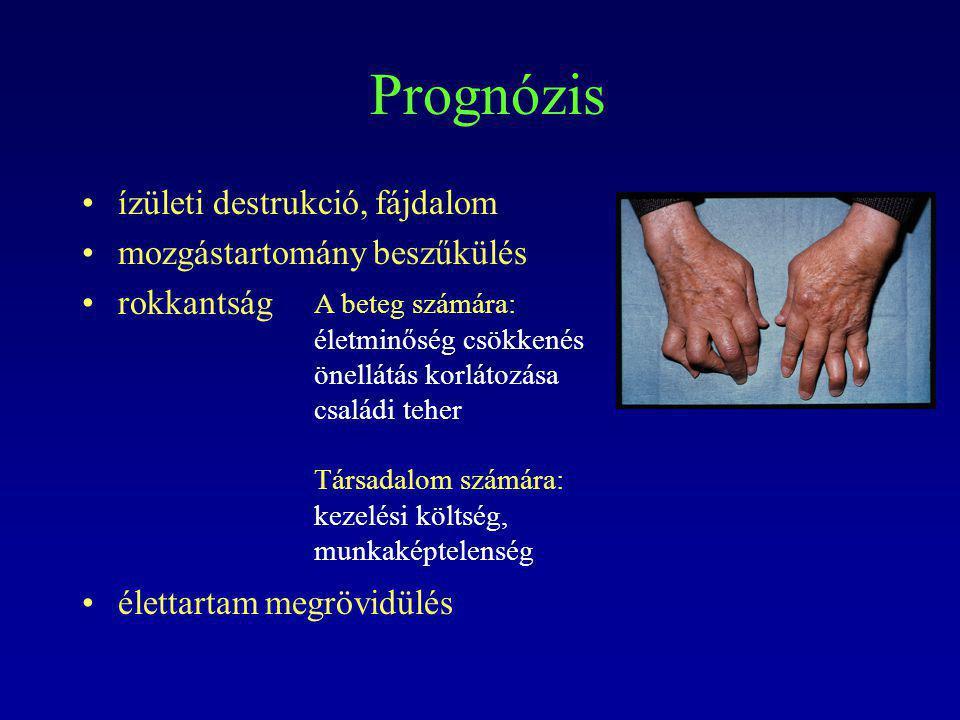 Prognózis ízületi destrukció, fájdalom mozgástartomány beszűkülés