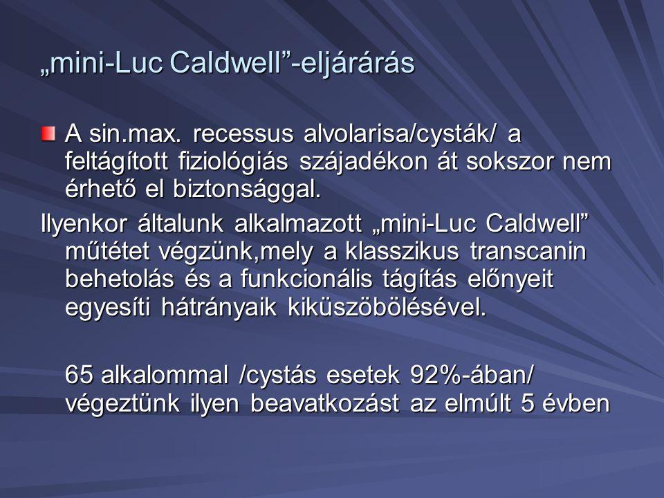 """""""mini-Luc Caldwell -eljárárás"""