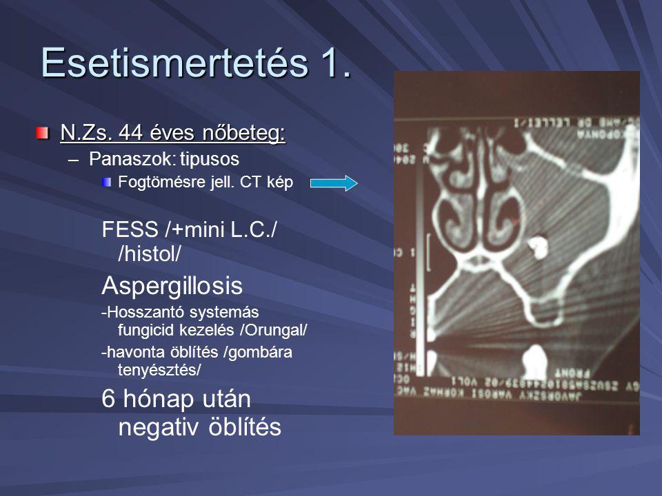 Esetismertetés 1. Aspergillosis 6 hónap után negativ öblítés