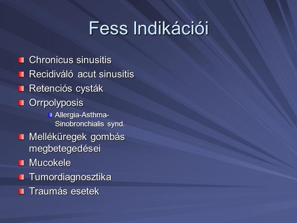 Fess Indikációi Chronicus sinusitis Recidiváló acut sinusitis