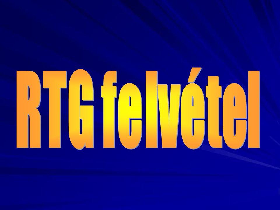 RTG felvétel