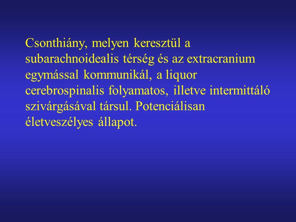 Csonthiány, melyen keresztül a subarachnoidealis térség és az extracranium egymással kommunikál, a liquor cerebrospinalis folyamatos, illetve intermittáló szivárgásával társul.
