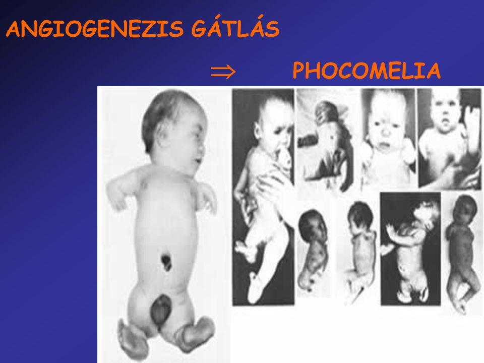 ANGIOGENEZIS GÁTLÁS  PHOCOMELIA ANGIOGENEZIS GÁTLÁS  PHOCOMELIA