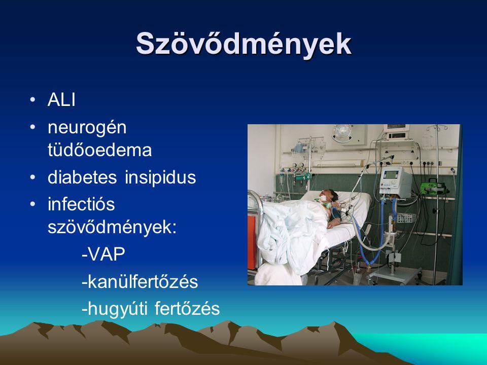 Szövődmények ALI neurogén tüdőoedema diabetes insipidus