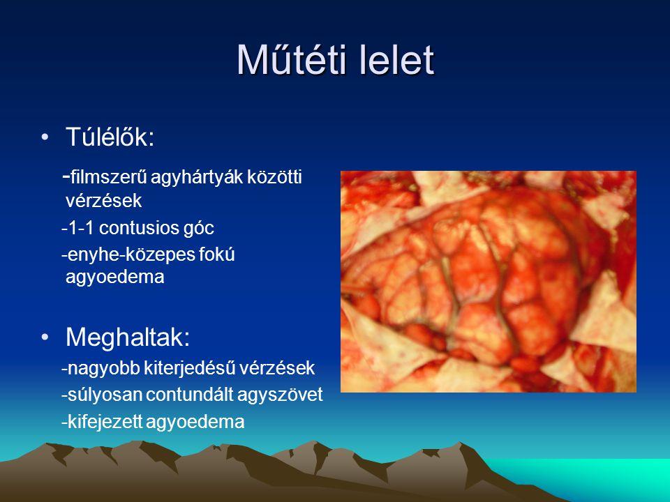 Műtéti lelet Túlélők: -filmszerű agyhártyák közötti vérzések