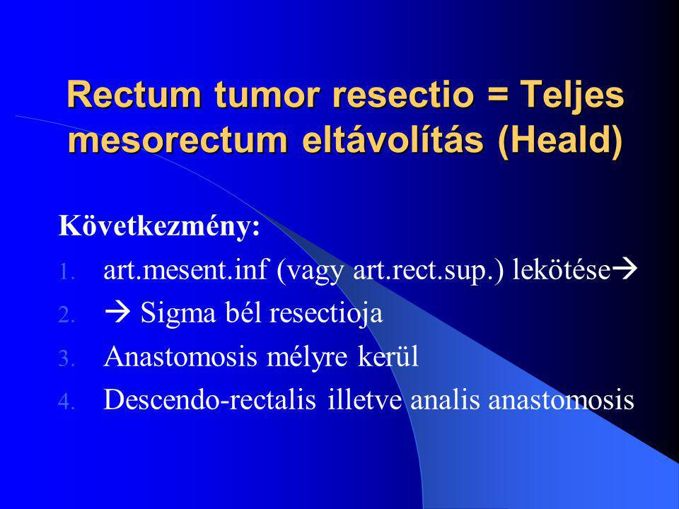 Rectum tumor resectio = Teljes mesorectum eltávolítás (Heald)
