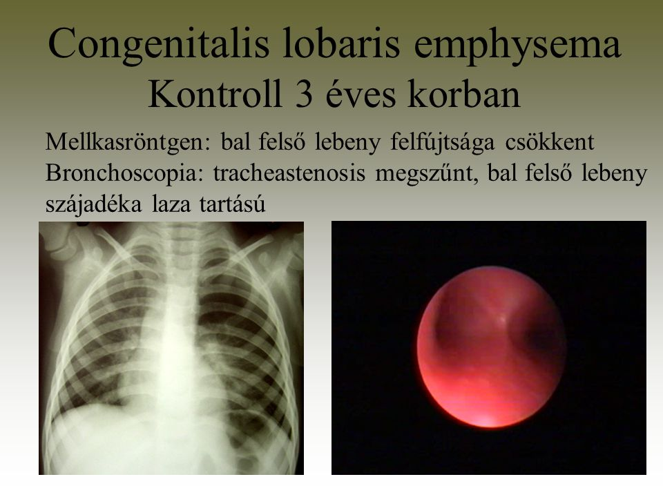Congenitalis lobaris emphysema