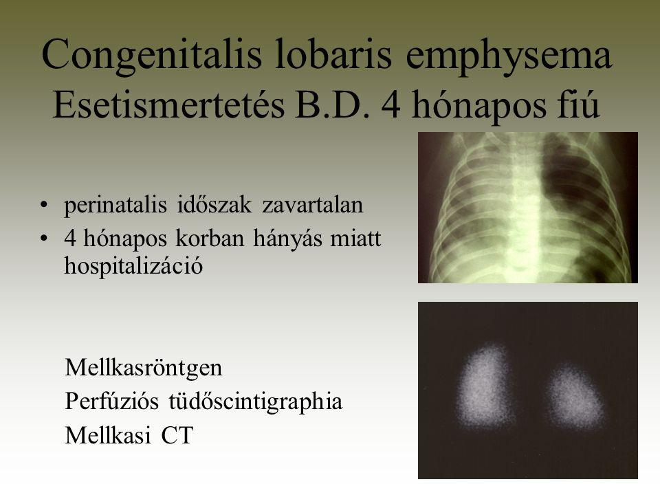 Congenitalis lobaris emphysema Esetismertetés B.D. 4 hónapos fiú