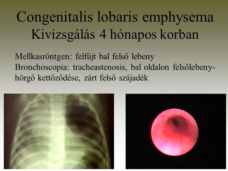 Congenitalis lobaris emphysema Kivizsgálás 4 hónapos korban