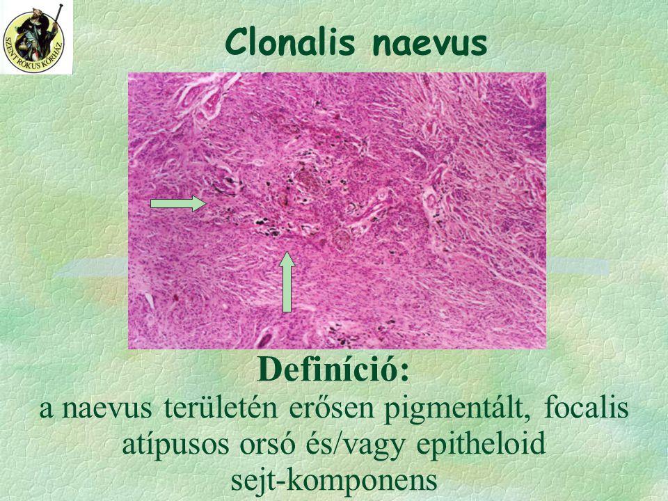 Clonalis naevus Definíció: a naevus területén erősen pigmentált, focalis atípusos orsó és/vagy epitheloid sejt-komponens.