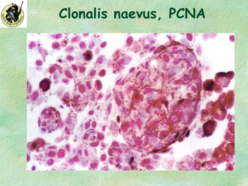 Clonalis naevus, PCNA