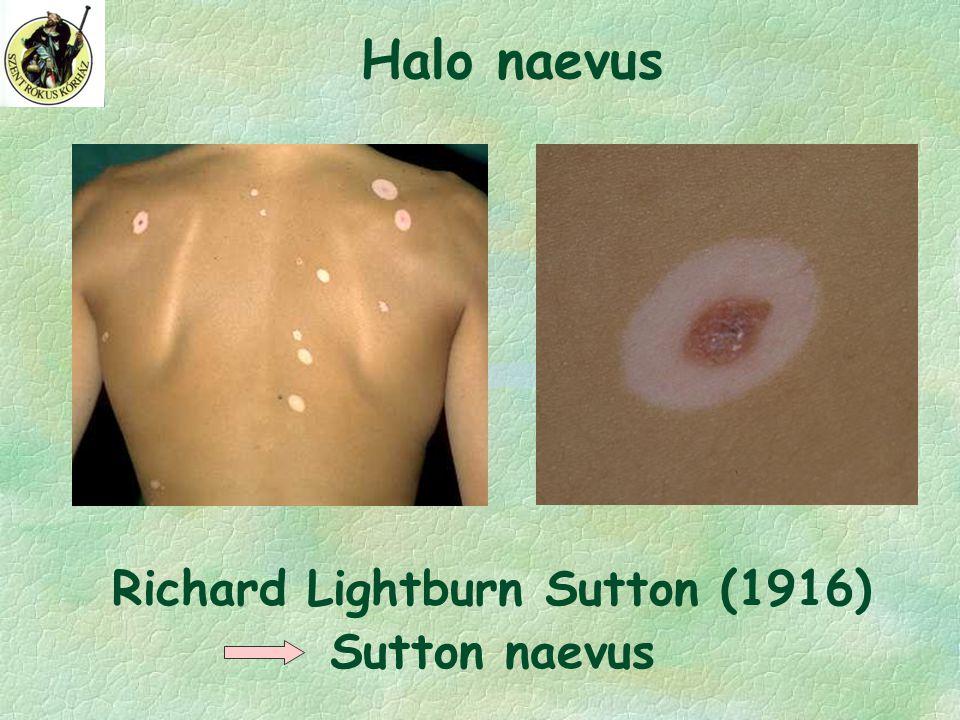 Richard Lightburn Sutton (1916) Sutton naevus