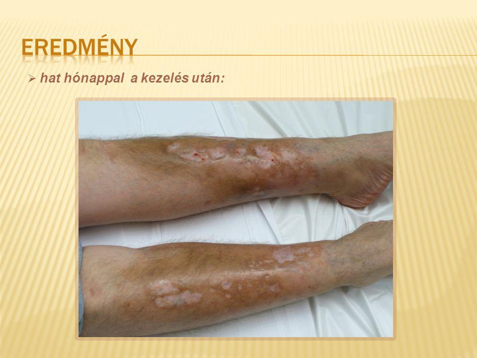 eredmény hat hónappal a kezelés után: