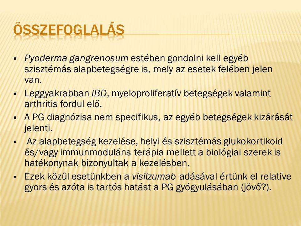 összefoglalás Pyoderma gangrenosum estében gondolni kell egyéb szisztémás alapbetegségre is, mely az esetek felében jelen van.
