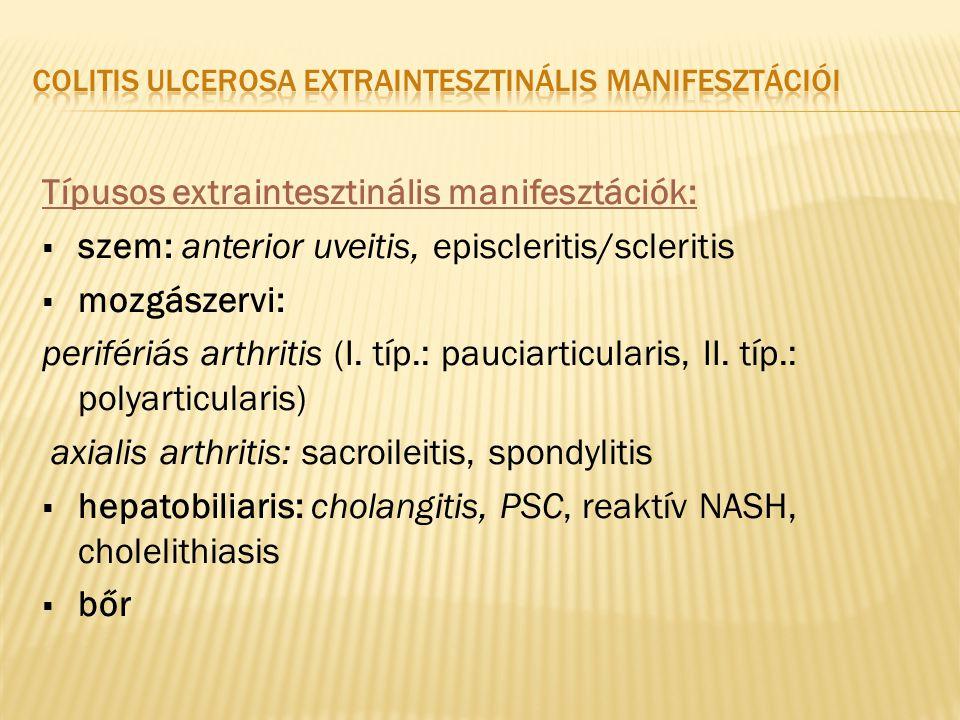Colitis ulcerosa extraintesztinális manifesztációi