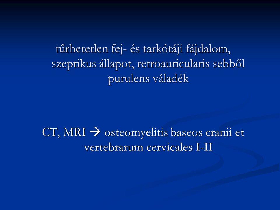 CT, MRI  osteomyelitis baseos cranii et vertebrarum cervicales I-II