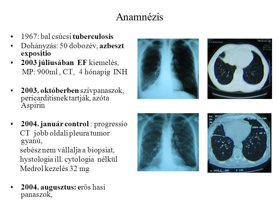 Anamnézis 1967: bal csúcsi tuberculosis