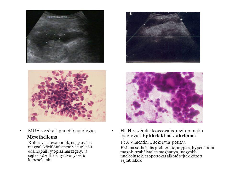 MUH vezérelt punctio cytologia: Mesothelioma