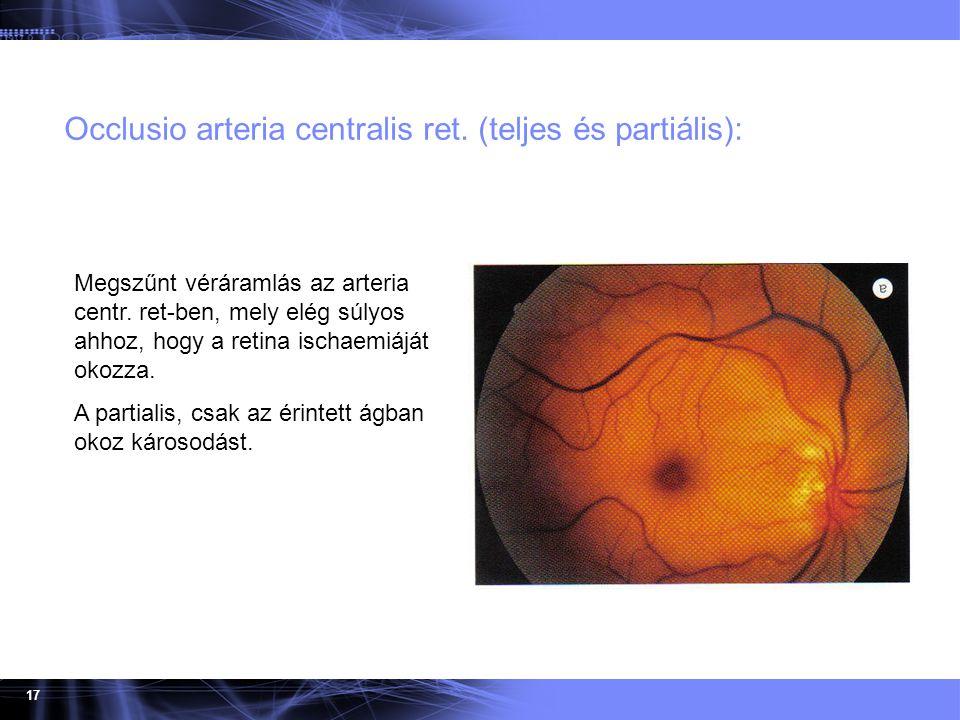 Occlusio arteria centralis ret. (teljes és partiális):
