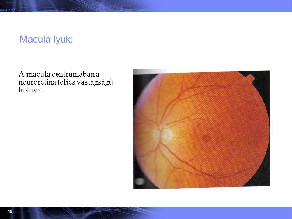Macula lyuk: A macula centrumában a neuroretina teljes vastagságú hiánya.