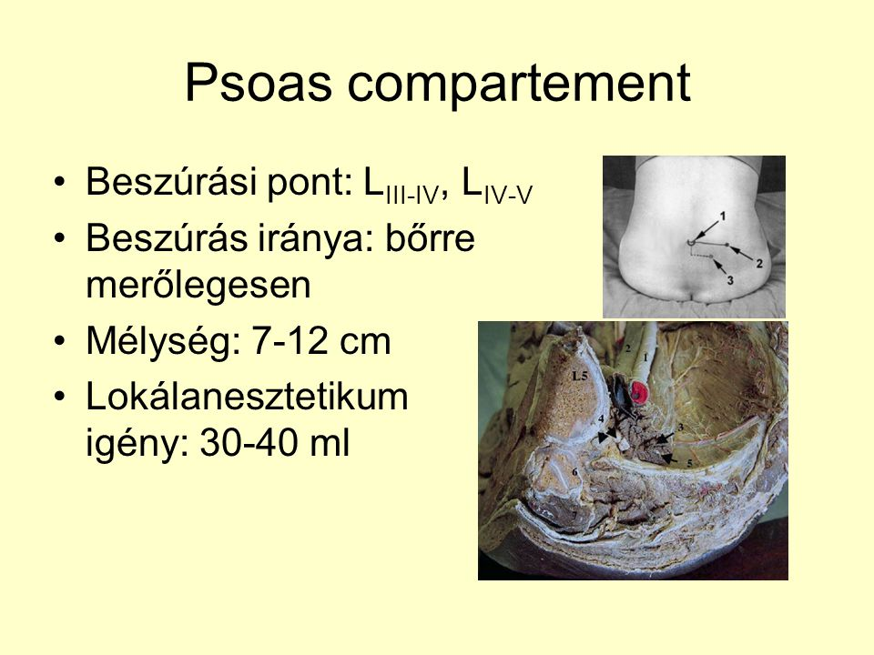 Psoas compartement Beszúrási pont: LIII-IV, LIV-V