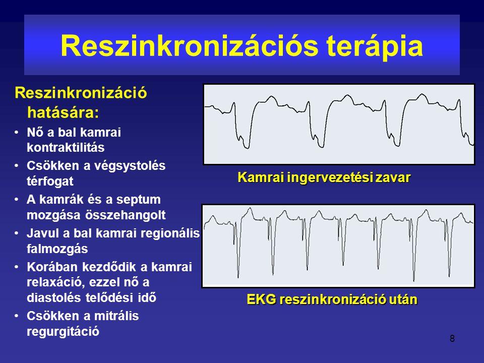 Reszinkronizációs terápia