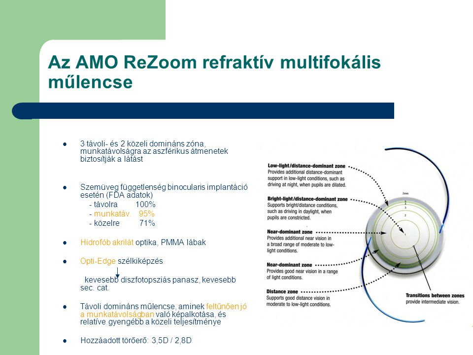 Az AMO ReZoom refraktív multifokális műlencse